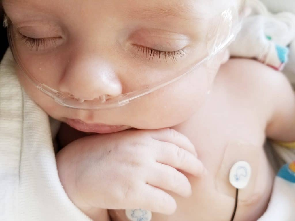 premature newborn baby on oxygen cannula